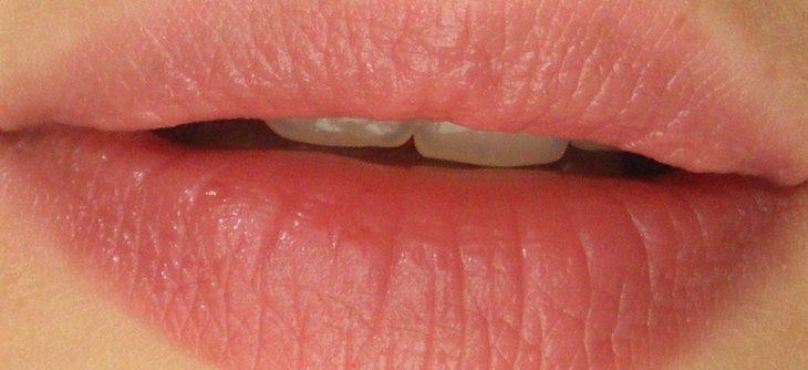 Quels soins pour mes lèvres cet hiver ?