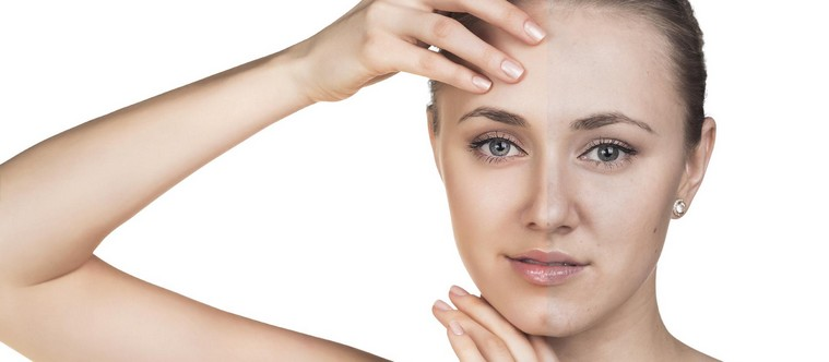 Comment atténuer ses cicatrices d'acné ?