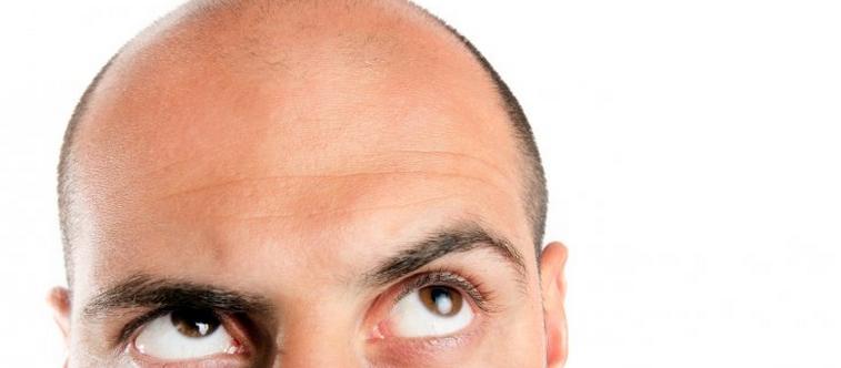 Les implants capillaires : la nouvelle mode